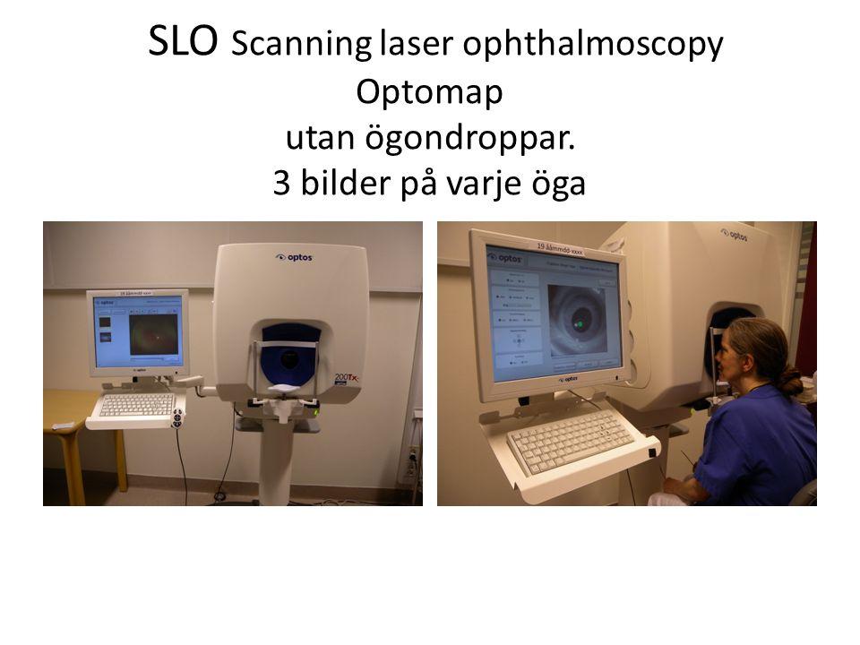 SLO Scanning laser ophthalmoscopy Optomap utan ögondroppar. 3 bilder på varje öga
