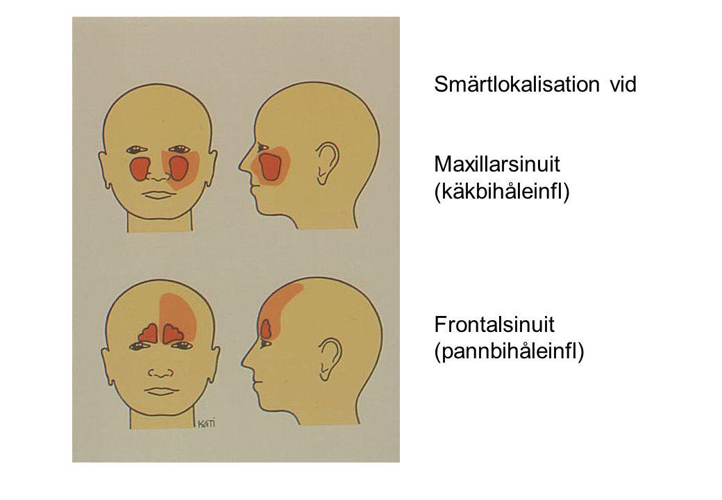Smärtlokalisation vid Maxillarsinuit (käkbihåleinfl) Frontalsinuit (pannbihåleinfl)