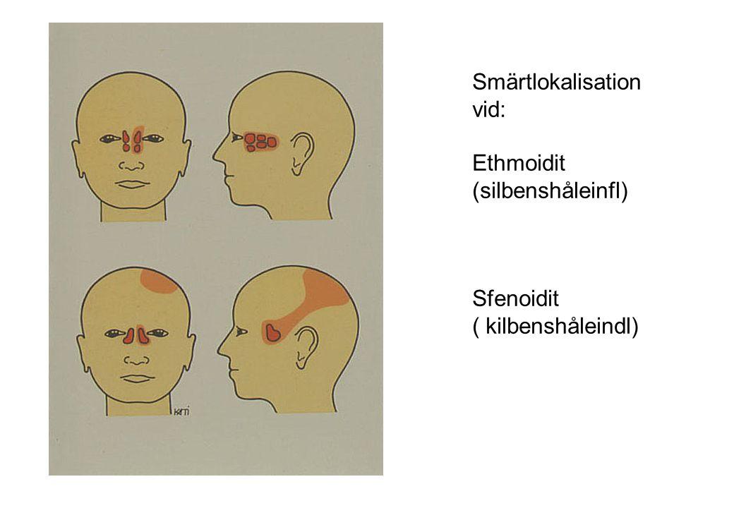 Akut bakteriell rinosinuit- diagnostik Anamnesen är relativt svår ÖLI med spänningshuvudvärk-ger samma symtom Mycket ovanligt att sinuit utvecklas< 7-10 d Främre rinoskopi är minimikrav.