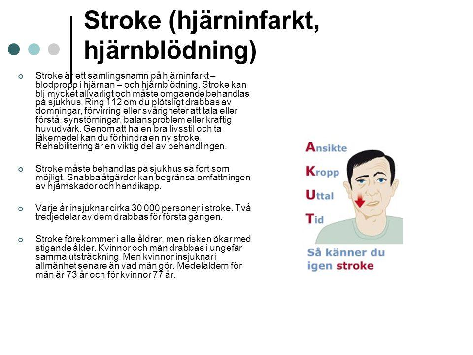 Stroke (hjärninfarkt, hjärnblödning) Stroke är ett samlingsnamn på hjärninfarkt – blodpropp i hjärnan – och hjärnblödning. Stroke kan bli mycket allva
