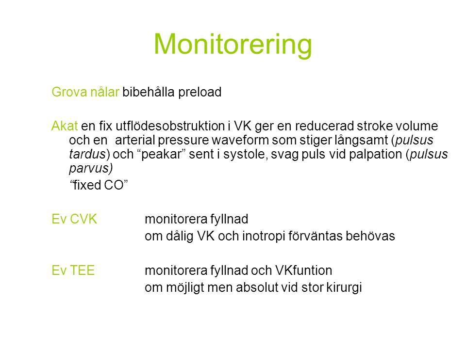 Monitorering Grova nålar bibehålla preload Akat en fix utflödesobstruktion i VK ger en reducerad stroke volume och en arterial pressure waveform som s