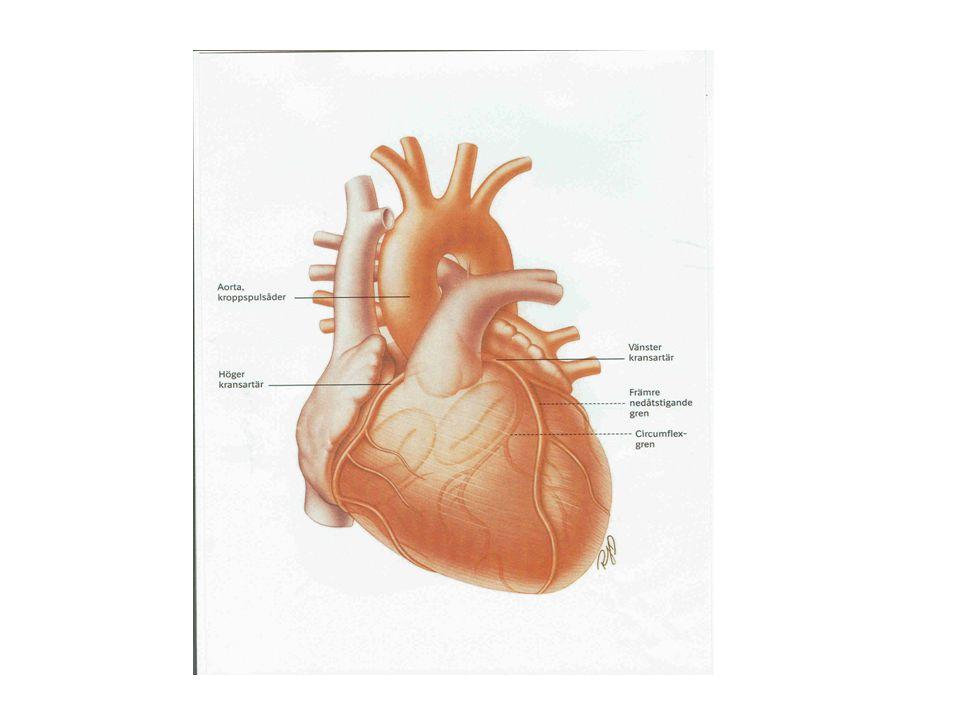 Mitralstenos Normal klaffarea4-6 cm 2 Symtomfri till1,5-2,5 cm 2 Moderat stenos1-1,5 cm 2 Tät stenos< 1 cm 2 Diagnos TTE –liten VK, stor HK