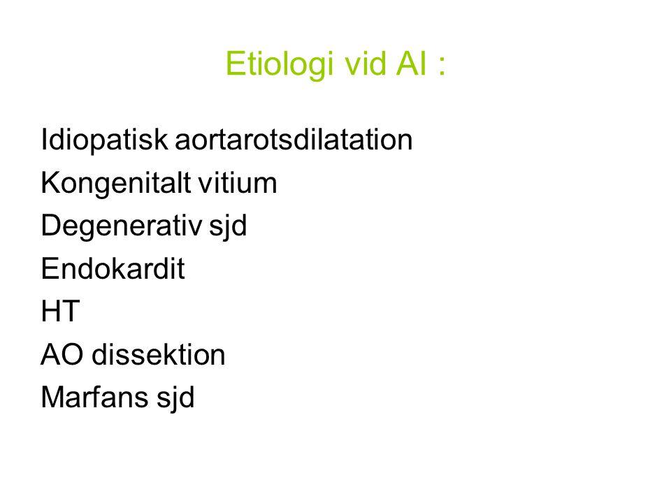 Etiologi vid AI : Idiopatisk aortarotsdilatation Kongenitalt vitium Degenerativ sjd Endokardit HT AO dissektion Marfans sjd