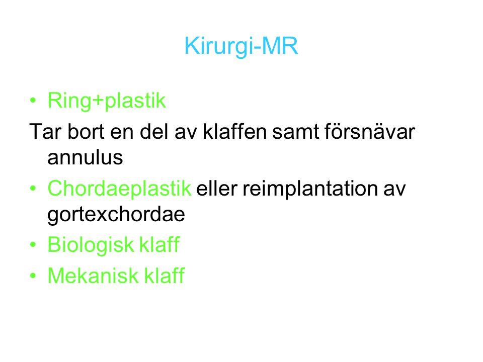 Kirurgi-MR Ring+plastik Tar bort en del av klaffen samt försnävar annulus Chordaeplastik eller reimplantation av gortexchordae Biologisk klaff Mekanis
