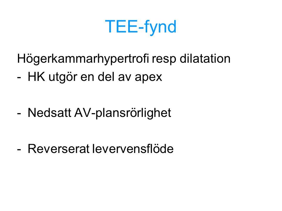 TEE-fynd Högerkammarhypertrofi resp dilatation -HK utgör en del av apex -Nedsatt AV-plansrörlighet -Reverserat levervensflöde