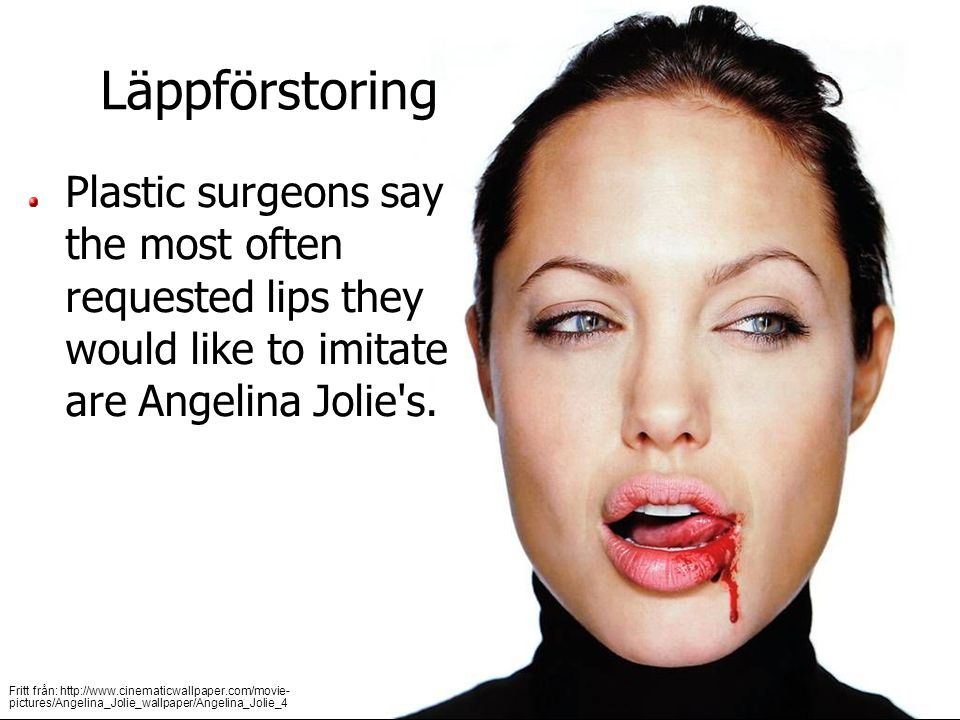 (c) 2007 brainybetty.com All Rights Reserved.10 Läppförstoring Plastic surgeons say the most often requested lips they would like to imitate are Angelina Jolie s.