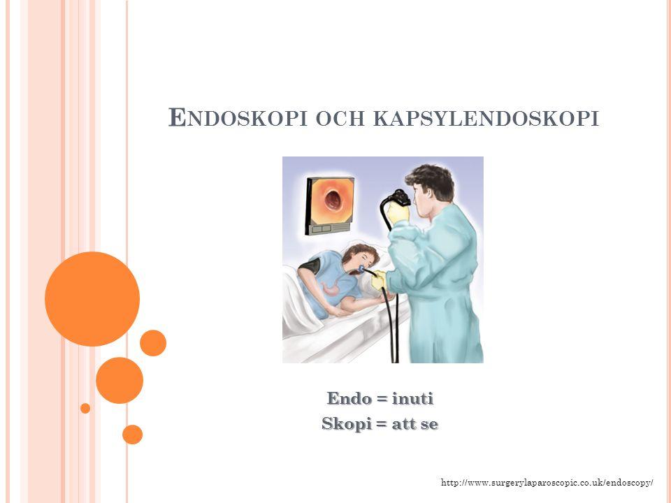 E NDOSKOPI OCH KAPSYLENDOSKOPI Endo = inuti Skopi = att se http://www.surgerylaparoscopic.co.uk/endoscopy/
