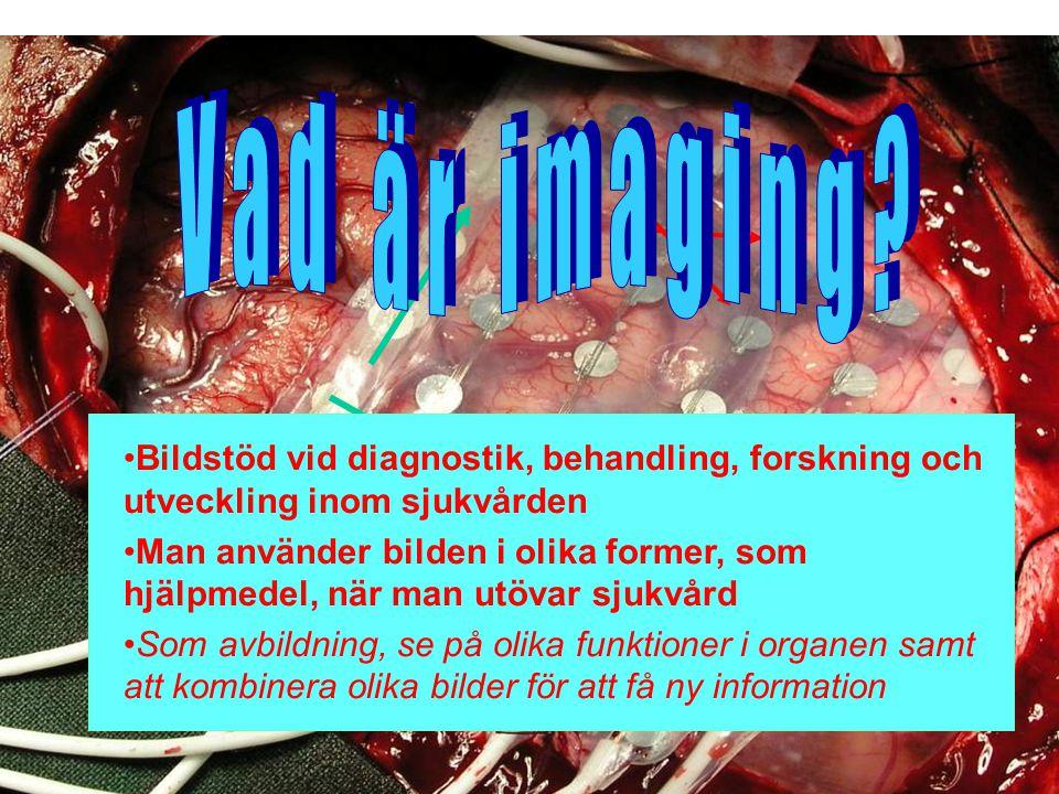 2009.05.13/L.Ring Bildstöd vid diagnostik, behandling, forskning och utveckling inom sjukvården Man använder bilden i olika former, som hjälpmedel, nä