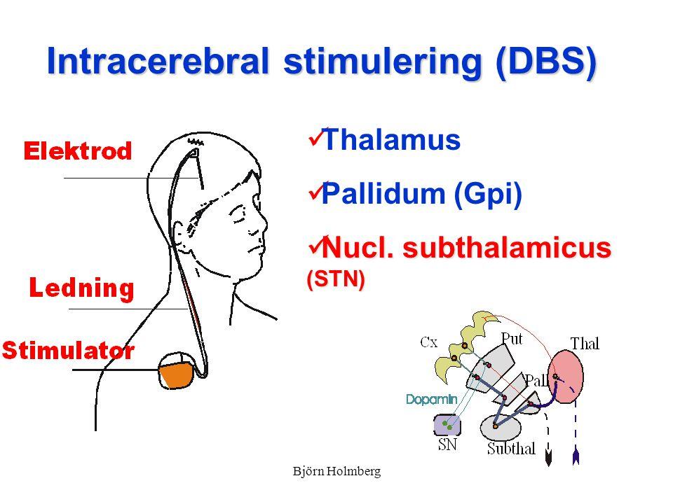 Intracerebral stimulering (DBS) Thalamus Pallidum (Gpi) Nucl. subthalamicus (STN) Nucl. subthalamicus (STN) Björn Holmberg