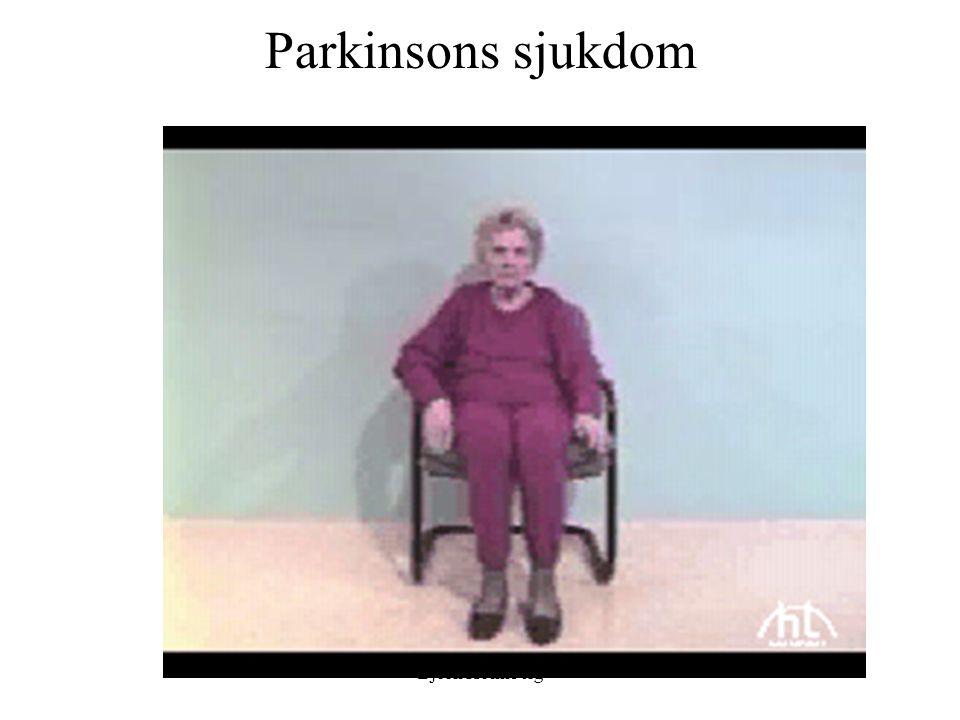 Differentialdiagnoser: atypisk parkinsonism: progressiv supranukleär pares (PSP): Okänd genes Prevalens: 5/100 000 Medelålder vid debut 60 (40-85) Klinik: –Tidiga fall –Rak hållning –Yrsel –Dysartri –Axial rigiditet, retrocollis –Parkinsonism –Dålig l-doparespons –Frontala symtom/ demens –Snabb progress –Förvånat ansiktsuttryck –Pyramidbanepåverkan –Vertikal blickpares Björn Holmberg