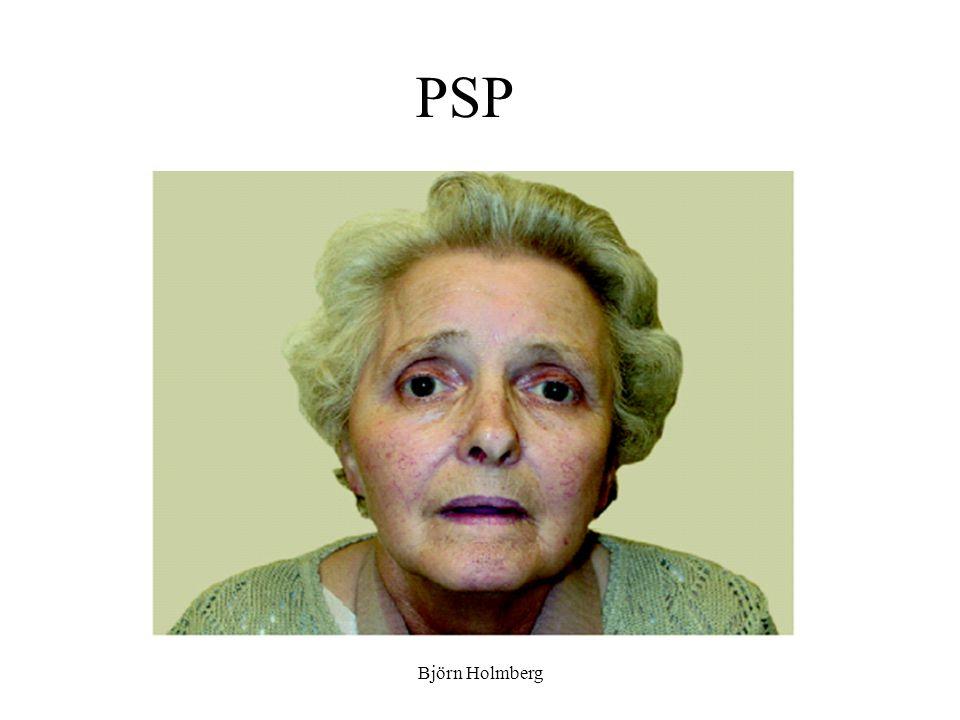 PSP Björn Holmberg