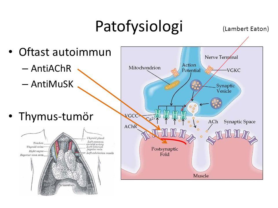 Patofysiologi Oftast autoimmun – AntiAChR – AntiMuSK Thymus-tumör (Lambert Eaton)