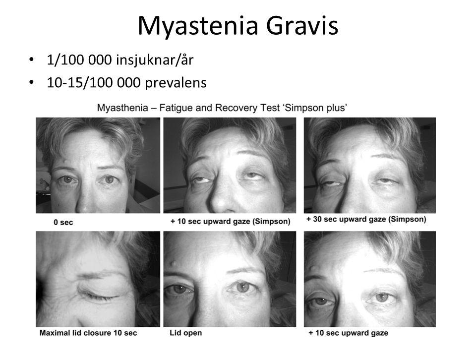 Myastenia Gravis 1/100 000 insjuknar/år 10-15/100 000 prevalens