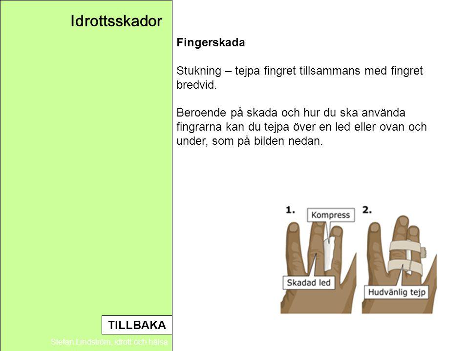 Idrottsskador Stefan Lindström, idrott och hälsa Fingerskada Stukning – tejpa fingret tillsammans med fingret bredvid. Beroende på skada och hur du sk