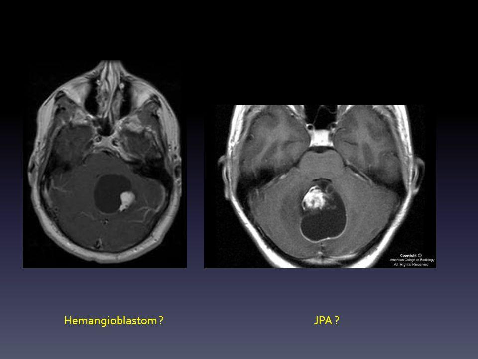 Hemangioblastom ?JPA ?