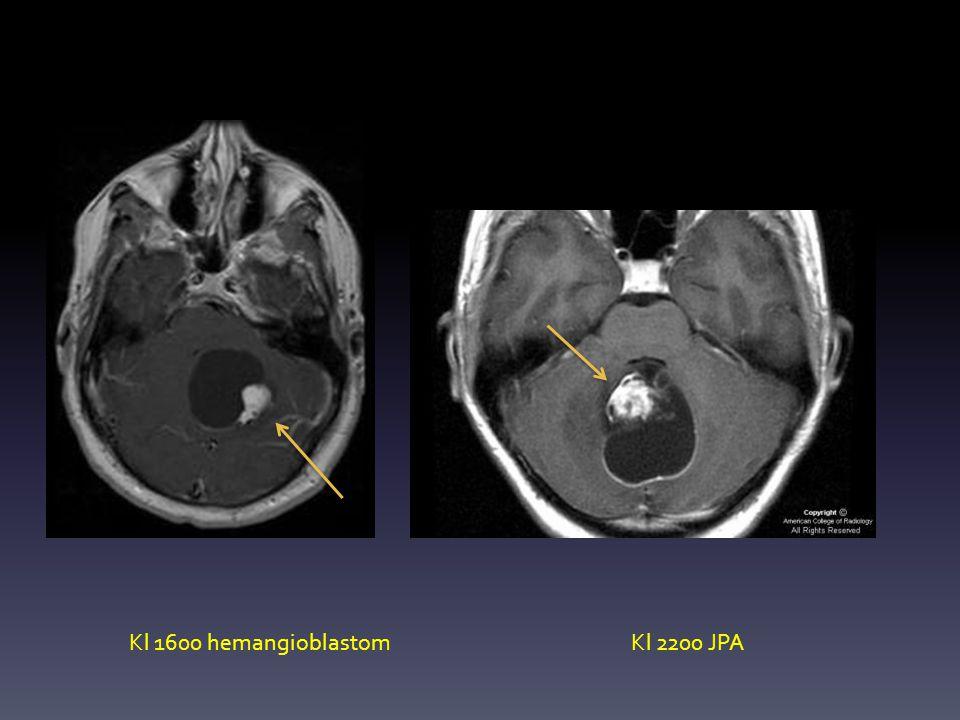 Kl 1600 hemangioblastomKl 2200 JPA
