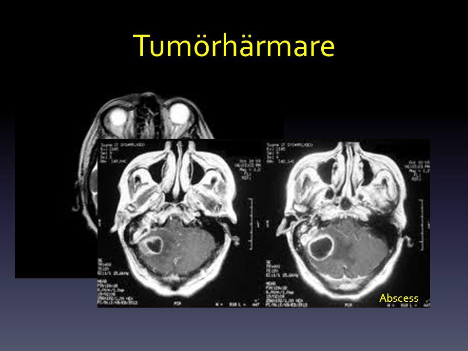 Tumörhärmare Pontin myelinolys Abscess
