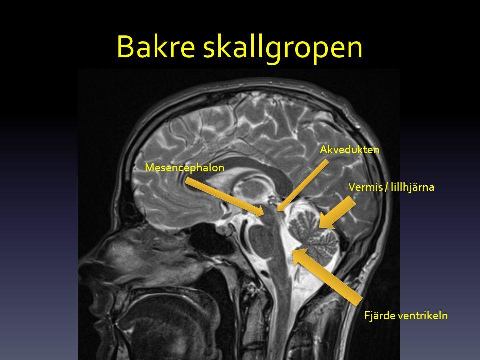 Bakre skallgropen Vermis / lillhjärna Mesencephalon Akvedukten Fjärde ventrikeln
