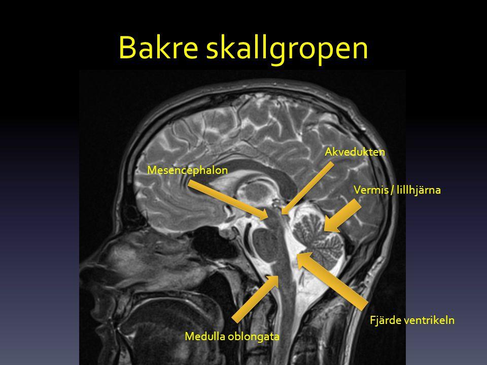 Bakre skallgropen Vermis / lillhjärna Mesencephalon Akvedukten Medulla oblongata Fjärde ventrikeln