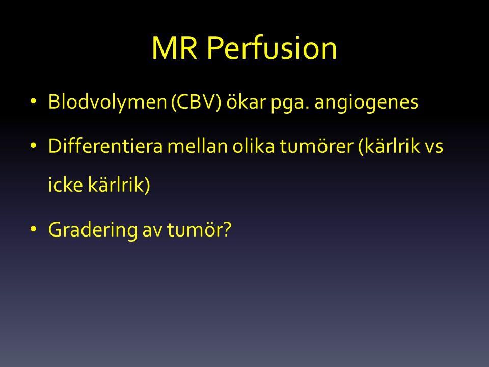 MR Perfusion Blodvolymen (CBV) ökar pga. angiogenes Differentiera mellan olika tumörer (kärlrik vs icke kärlrik) Gradering av tumör?