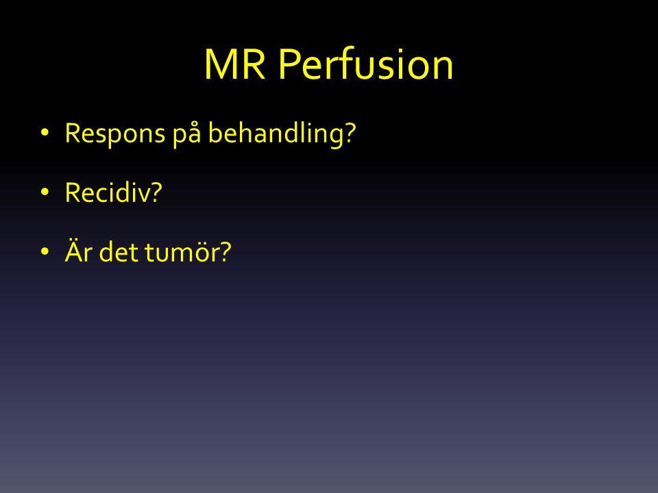 MR Perfusion Respons på behandling? Recidiv? Är det tumör?