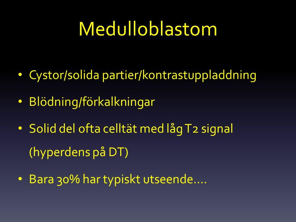 Medulloblastom Cystor/solida partier/kontrastuppladdning Blödning/förkalkningar Solid del ofta celltät med låg T2 signal (hyperdens på DT) Bara 30% ha