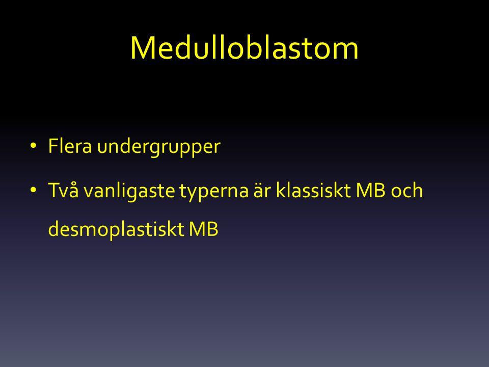 Medulloblastom Flera undergrupper Två vanligaste typerna är klassiskt MB och desmoplastiskt MB