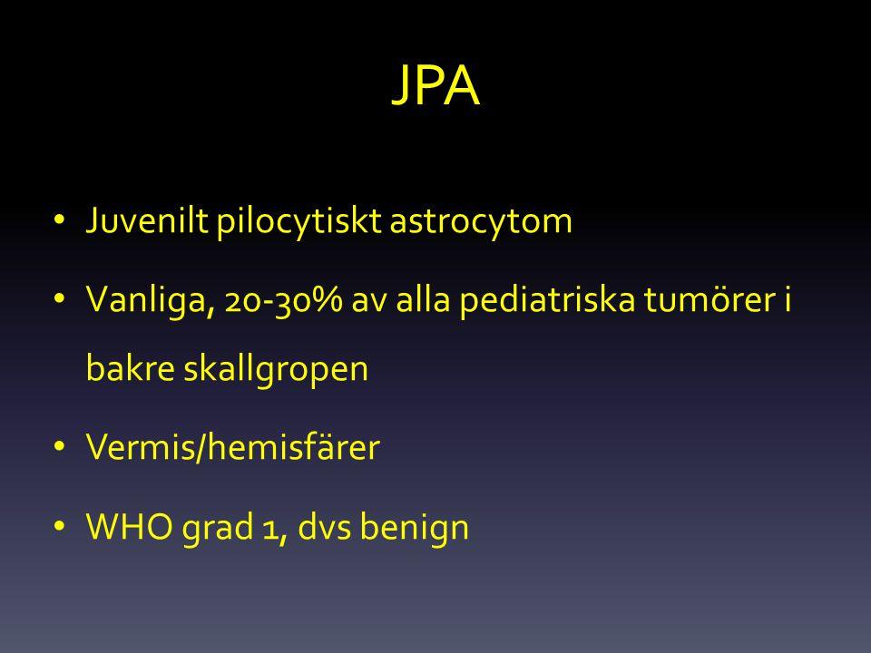 JPA Juvenilt pilocytiskt astrocytom Vanliga, 20-30% av alla pediatriska tumörer i bakre skallgropen Vermis/hemisfärer WHO grad 1, dvs benign