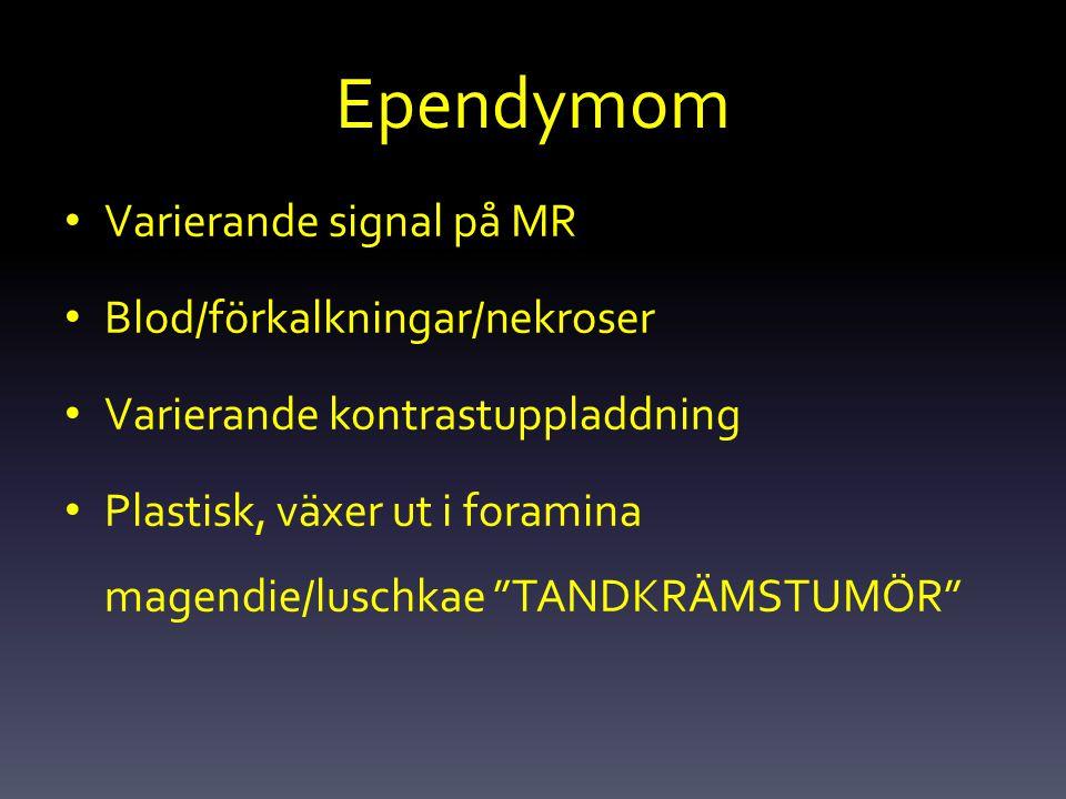 """Ependymom Varierande signal på MR Blod/förkalkningar/nekroser Varierande kontrastuppladdning Plastisk, växer ut i foramina magendie/luschkae """"TANDKRÄM"""