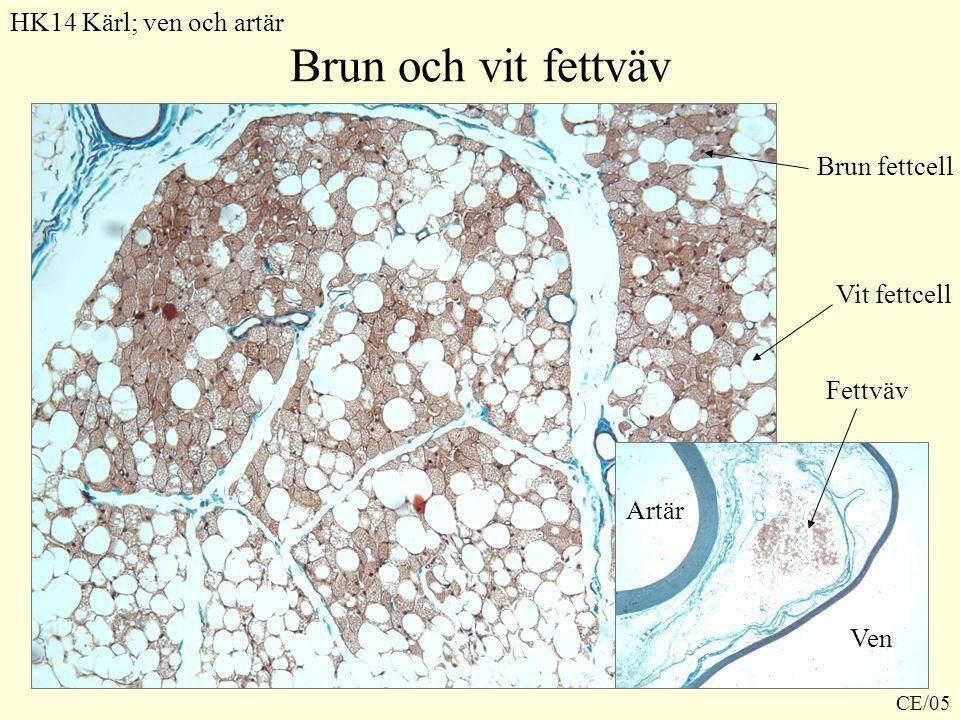 Brun och vit fettväv HK14 Kärl; ven och artär Brun fettcell Vit fettcell Ven Artär Fettväv CE/05