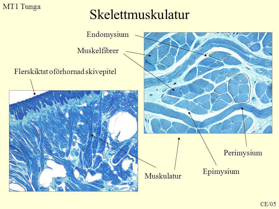 Skelettmuskulatur Flerskiktat oförhornad skivepitel MT1 Tunga Muskulatur Muskelfibrer Endomysium Perimysium Epimysium CE/05