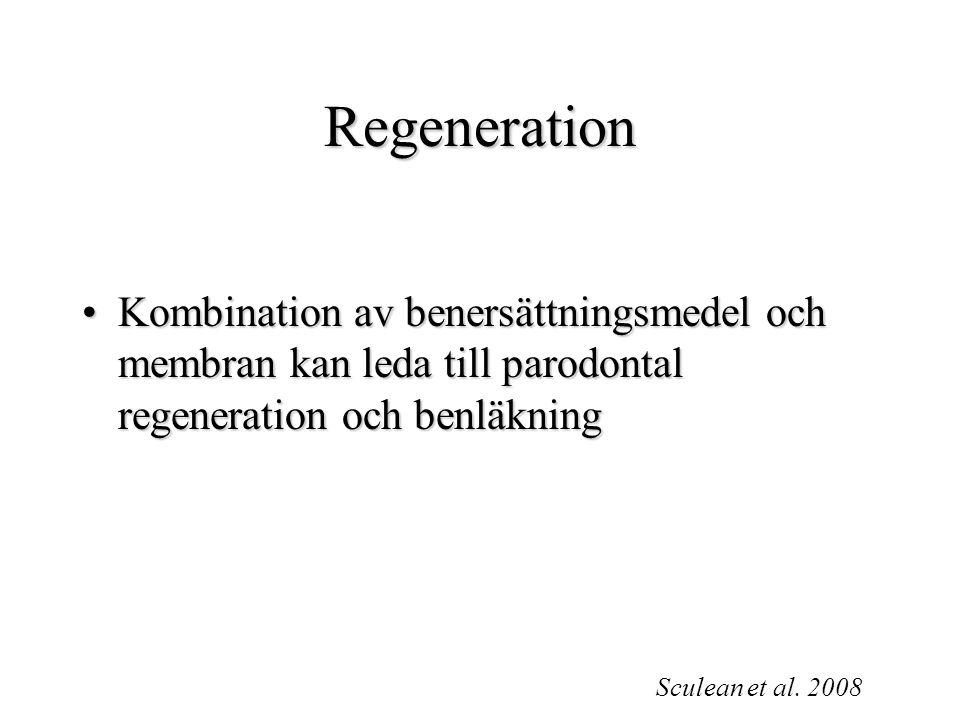Regeneration Kombination av benersättningsmedel och membran kan leda till parodontal regeneration och benläkningKombination av benersättningsmedel och