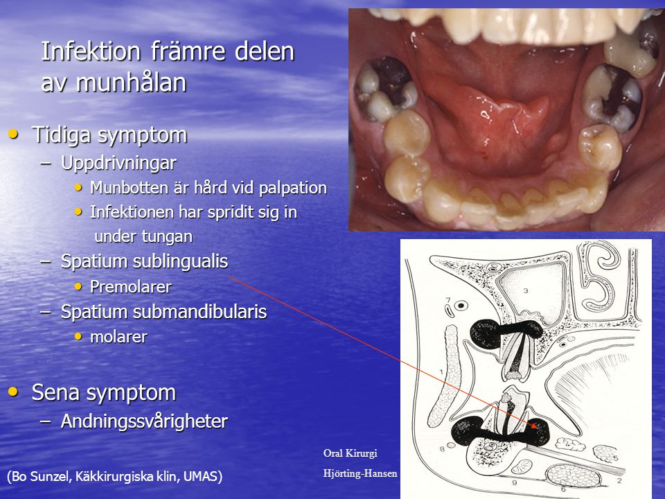 Infektion främre delen av munhålan Tidiga symptom Tidiga symptom –Uppdrivningar Munbotten är hård vid palpation Munbotten är hård vid palpation Infektionen har spridit sig in Infektionen har spridit sig in under tungan under tungan –Spatium sublingualis Premolarer Premolarer –Spatium submandibularis molarer molarer Sena symptom Sena symptom –Andningssvårigheter Oral Kirurgi Hjörting-Hansen (Bo Sunzel, Käkkirurgiska klin, UMAS)