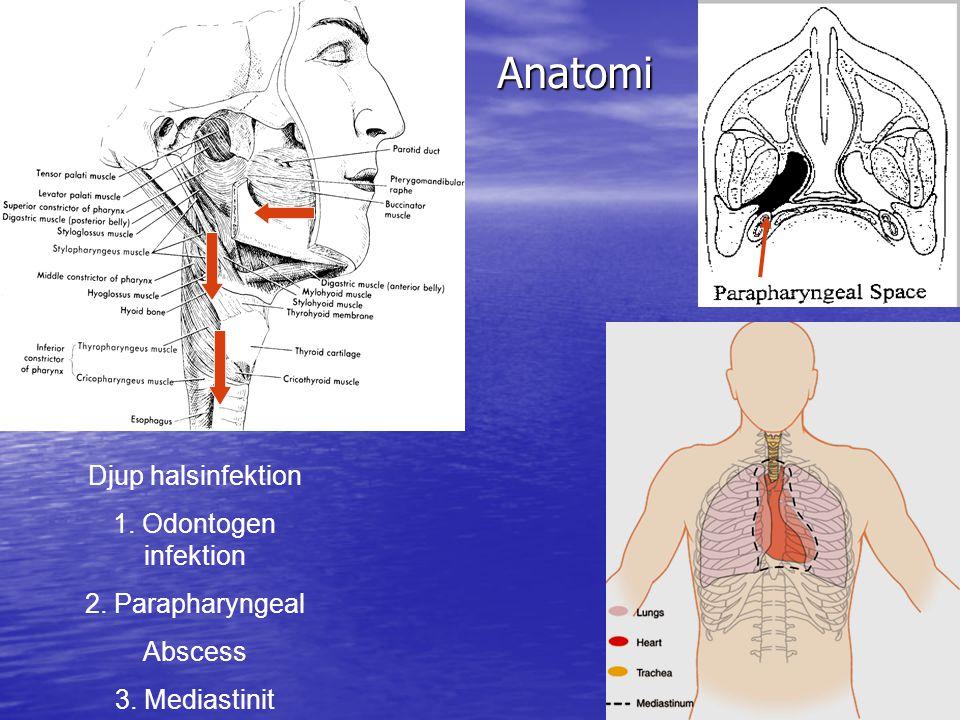Anatomi Anatomi Djup halsinfektion 1. Odontogen infektion 2. Parapharyngeal Abscess 3. Mediastinit