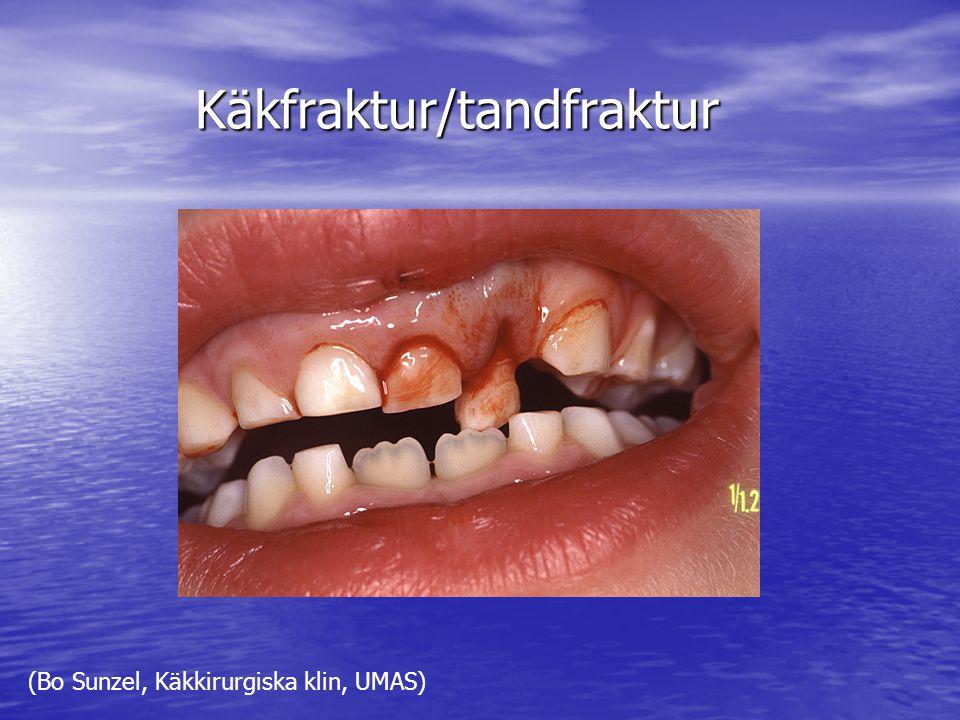 Käkfraktur/tandfraktur (Bo Sunzel, Käkkirurgiska klin, UMAS)