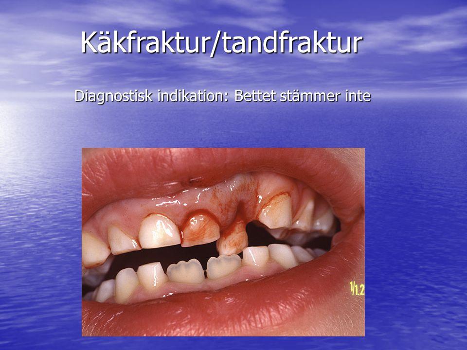 Diagnostisk indikation: Bettet stämmer inte Käkfraktur/tandfraktur