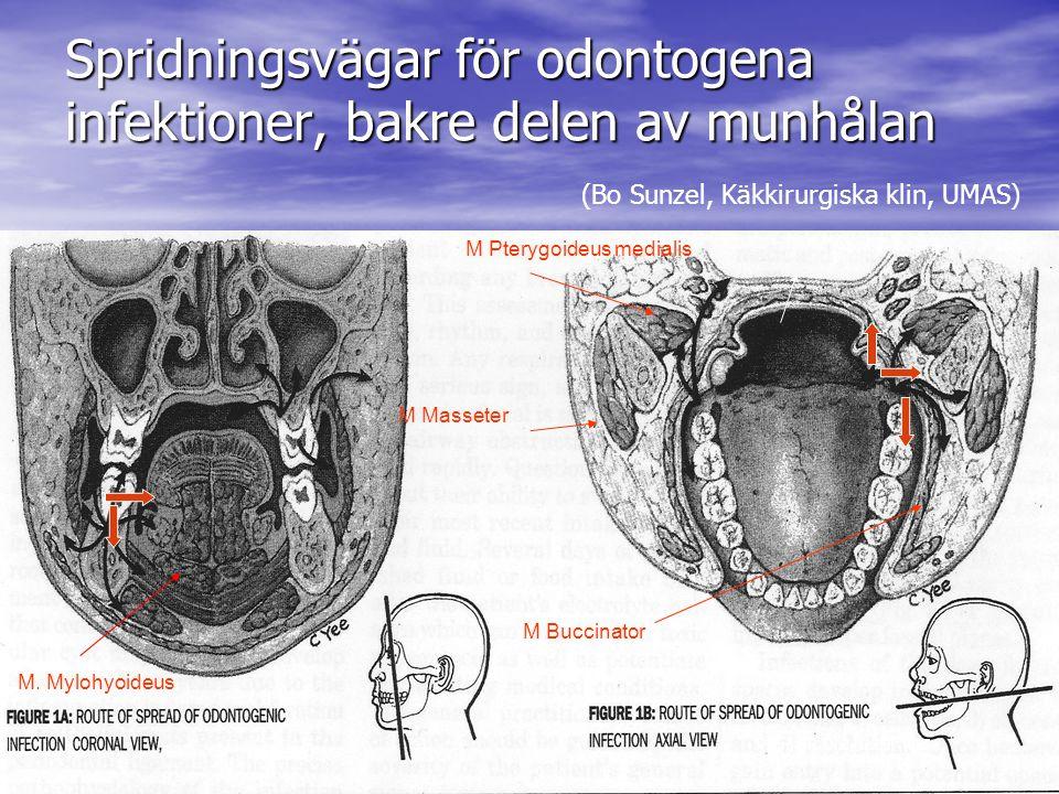 Spridningsvägar för odontogena infektioner, bakre delen av munhålan Pynn, BR Oral Health 1995 M.