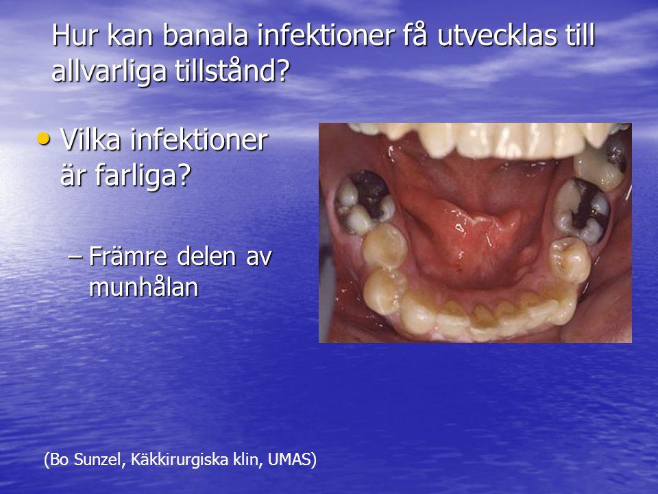 Hur kan banala infektioner få utvecklas till allvarliga tillstånd.