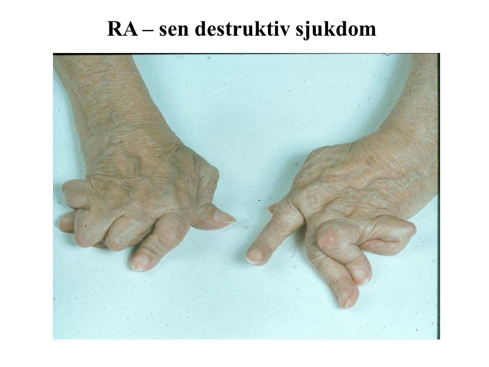 RA – sen destruktiv sjukdom