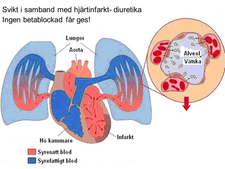 Svikt i samband med hjärtinfarkt- diuretika Ingen betablockad får ges!