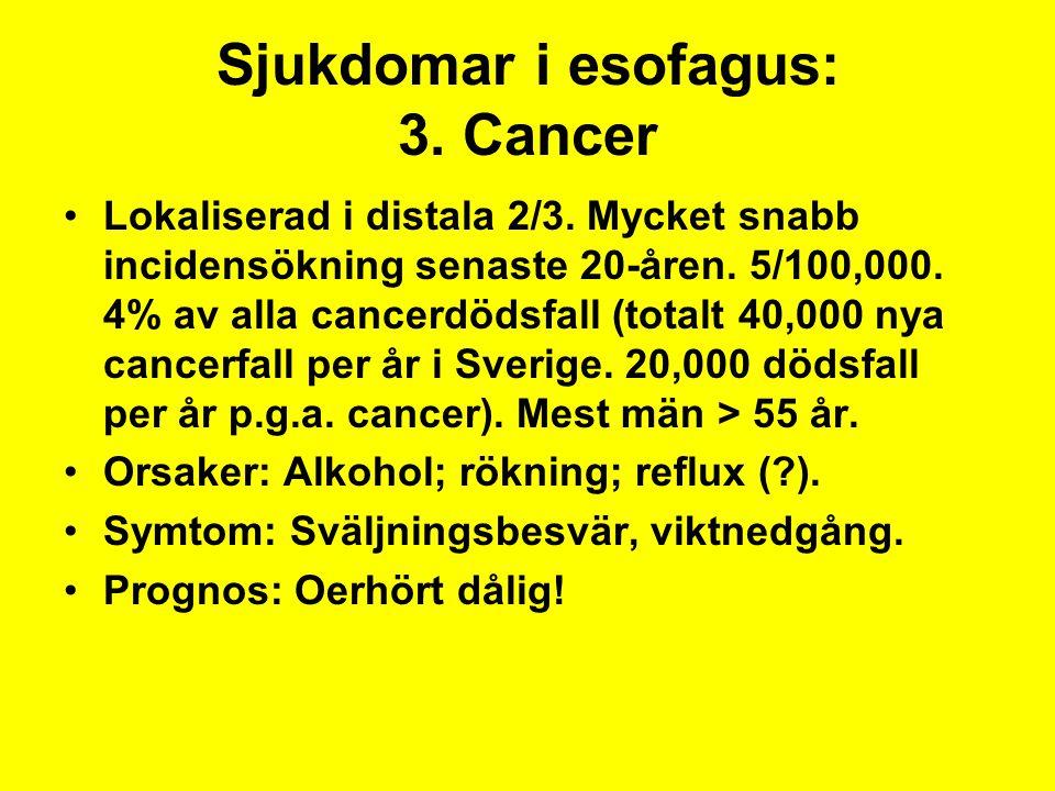 Sjukdomar i esofagus: 3. Cancer Lokaliserad i distala 2/3. Mycket snabb incidensökning senaste 20-åren. 5/100,000. 4% av alla cancerdödsfall (totalt 4
