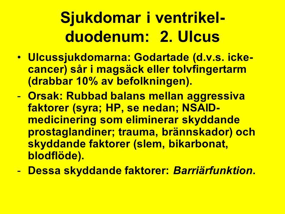 Sjukdomar i ventrikel- duodenum: 2. Ulcus Ulcussjukdomarna: Godartade (d.v.s. icke- cancer) sår i magsäck eller tolvfingertarm (drabbar 10% av befolkn