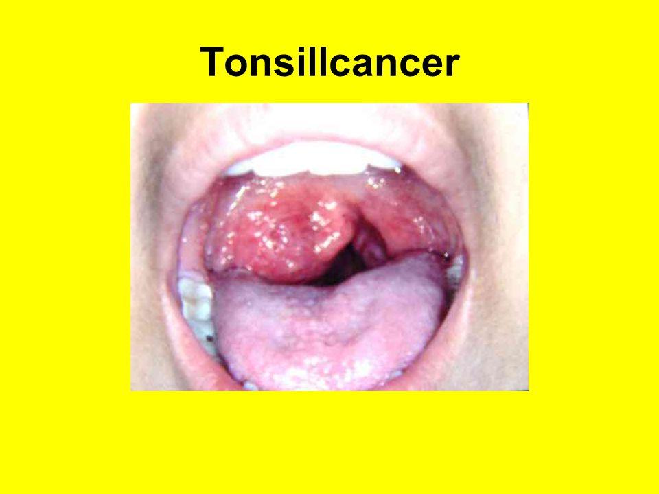 Tonsillcancer
