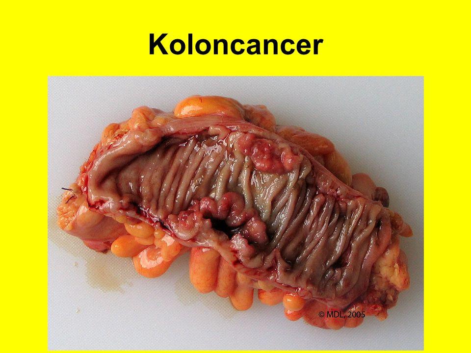 Koloncancer