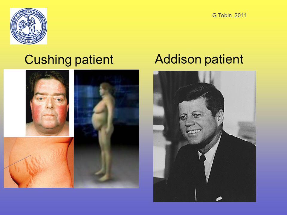 G Tobin, 2011 Farmakokinetik Oralt, IV eller IM Hydrokortison bundet till kortikosteroid- bindande globulin (77 %; ej syntetiska) Lägre bindning till albumin, som binder båda typer.