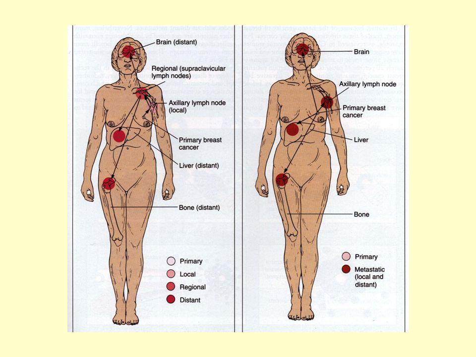 Förutom primärtumörens storlek, används lymfkörtel- metastasering och fjärrtumör- metastasering vid stadie- indelning av en tumör Ex vid bröstcancer T1, N0, M0 är en tumör i stadium I Primärtumörens storlek