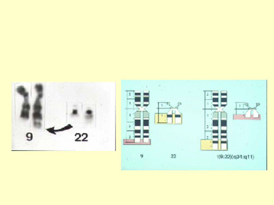 Akut leukemi Förekomst I befolkningen 5/100000/ år (<0.5/100 under livstid) Exponering för joniserande strålning ≤80/100000/år Exponering för bensen 13/100000/ år Cellgiftsbehandling 15-100/100000/ år Prognos AML barn 5 års överlevnad 35-40% vuxna 10 års överlevnad 10-20% ALLbarn 10 års överlevnad 50-70% vuxna 10 års överlevnad 20-35%