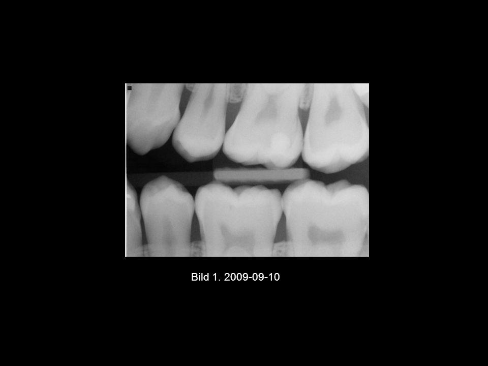 Bild 2 och 3 2011-04-27