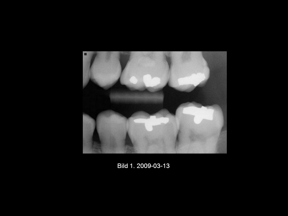 Bild 1. 2009-03-13