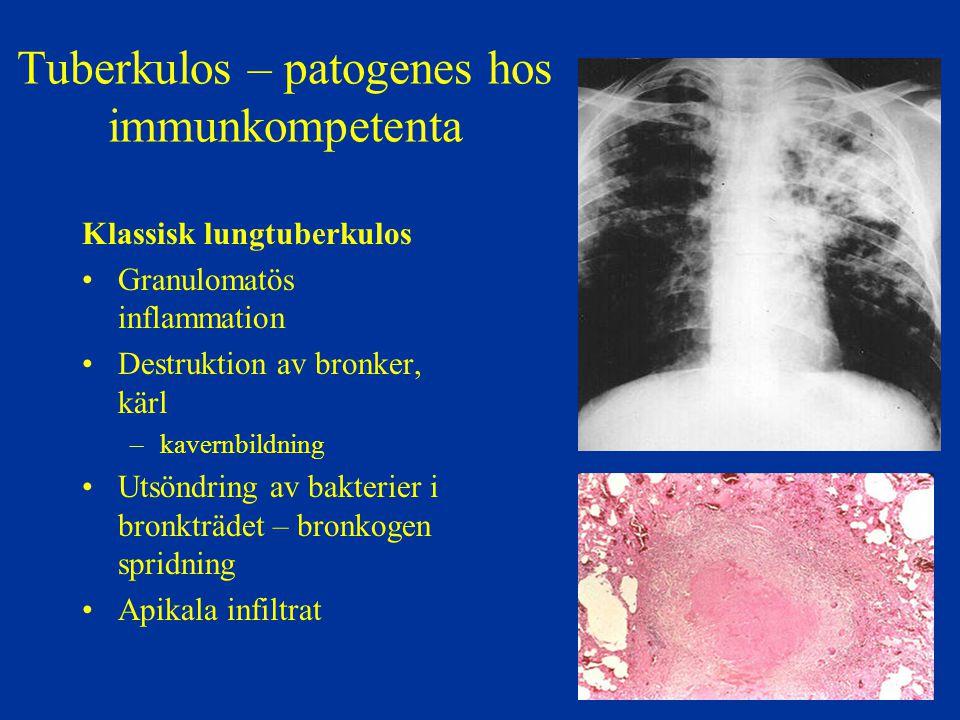Tuberkulos – patogenes hos immunkompetenta Klassisk lungtuberkulos Granulomatös inflammation Destruktion av bronker, kärl –kavernbildning Utsöndring a
